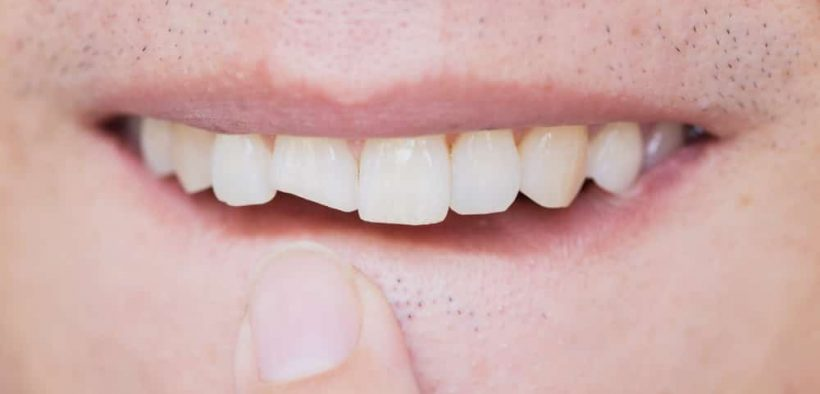 Top 4 Ways To Fix A Front Cracked Tooth